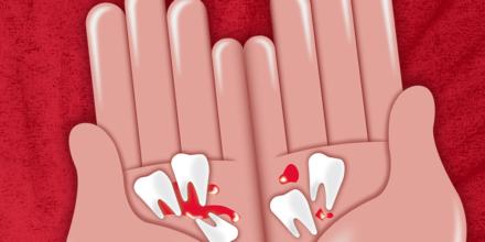 Los dientes de Raquel, esta de aniversario
